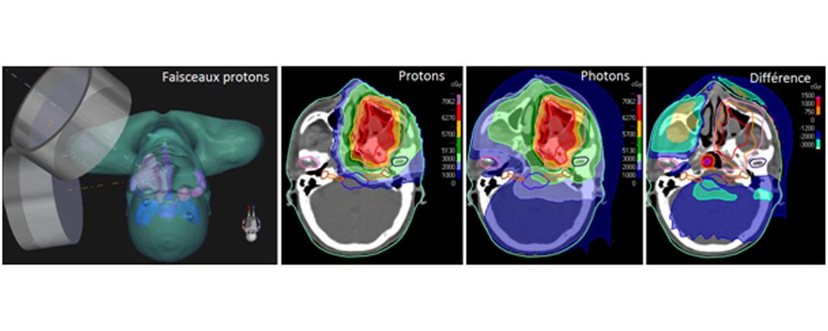 tumeur-orl-protontherapie-normandie
